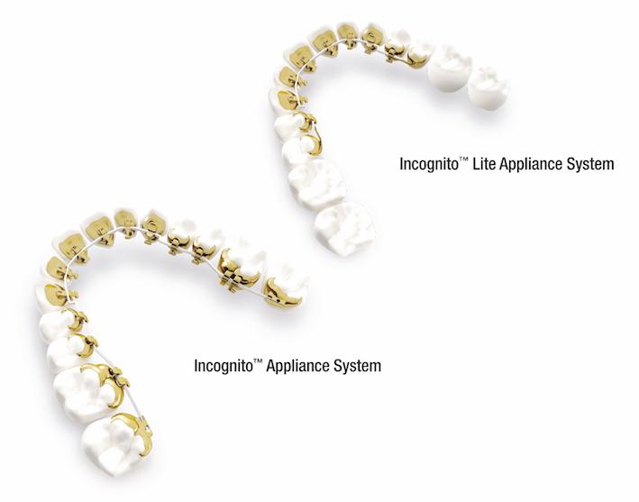 Kosten Incognito Zahnspange Und Preis Innenliegende Incognito Lite