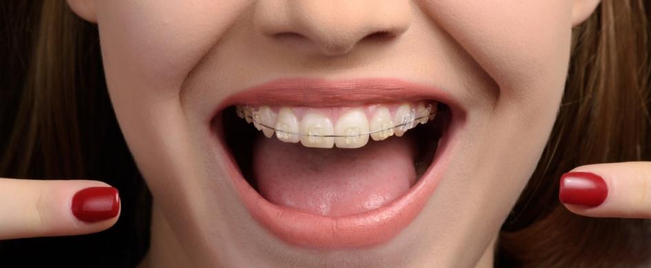 Festsitzende Zahnspange Wien mit durchsichtigen